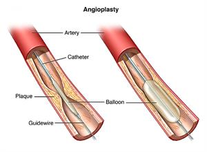 Angioplasty, showing artery with catheter, plaque, balloon and guidewire