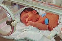 Imagen de un bebé en la unidad neonatal de cuidados intensivos