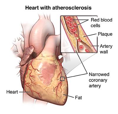 echocardiogram providence oregon