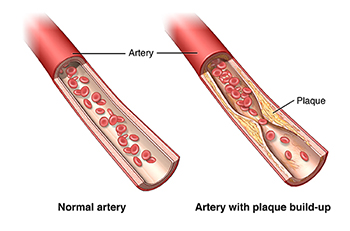 atherosclerosis - health encyclopedia - university of rochester, Human Body