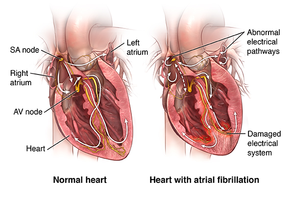 the heart sometimes lead the brain Is there one nostril that leads to the brain and one that leads to the body no both nostrils lead to the back of the throat is there one nostril that leads to the brain and one that.