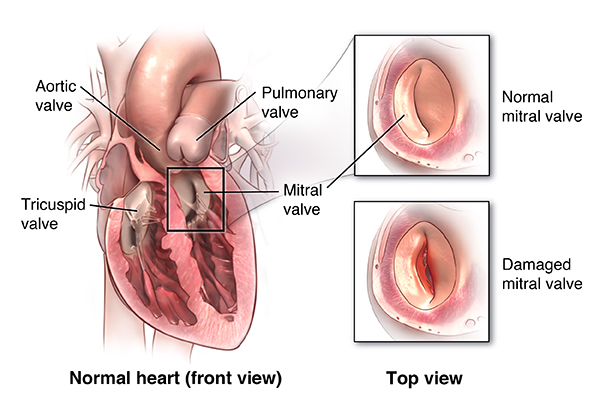 Heart Valve Repair Or Replacement Surgery - Health Encyclopedia - University Of Rochester-1817