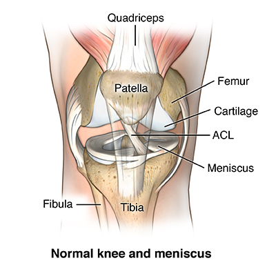 Torn meniscus health encyclopedia university of rochester torn meniscus ccuart Images