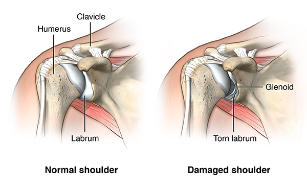Shoulder Dislocation - Comprehensive Orthopaedics