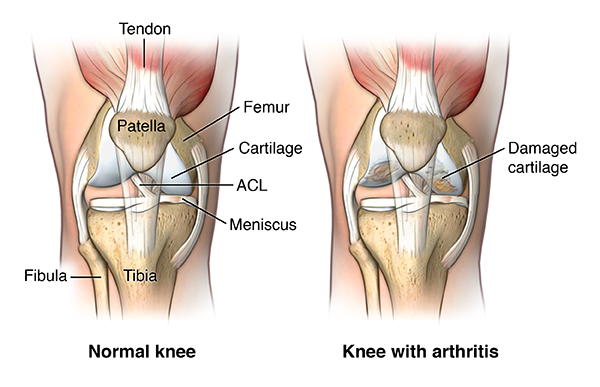 illustration comparing normal knee with healthy cartilage to an arthritic knee with damaged cartilage