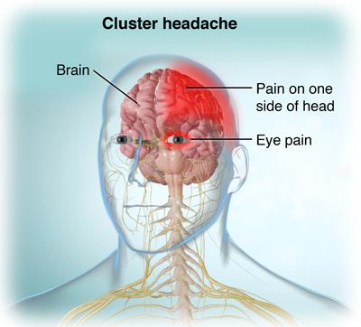 Cluster Kopfschmerzen Regionen