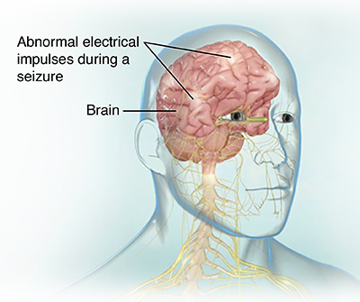 Electroencephalogram Eeg Johns Hopkins Medicine Health Library