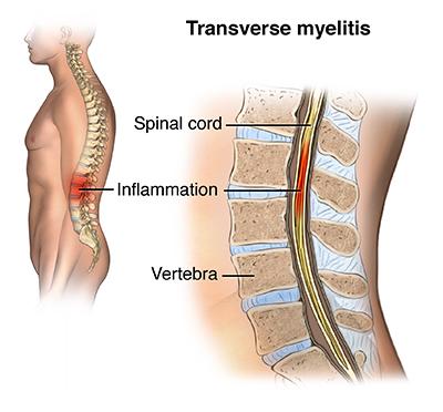 Myelitis steroids epidural steroid injection side effects diarrhea