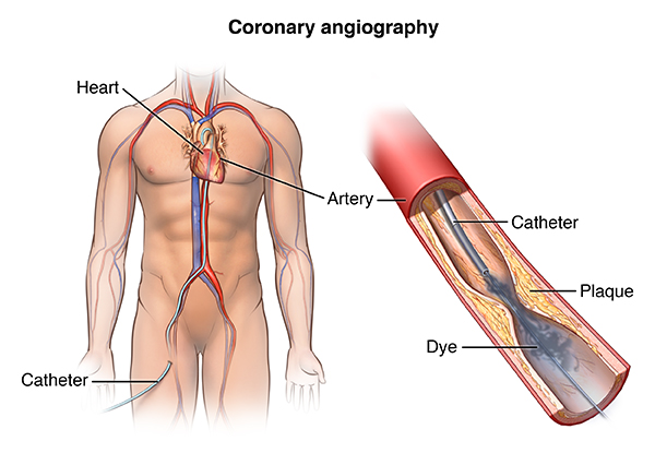 Cardiac Catheterization Health Encyclopedia University