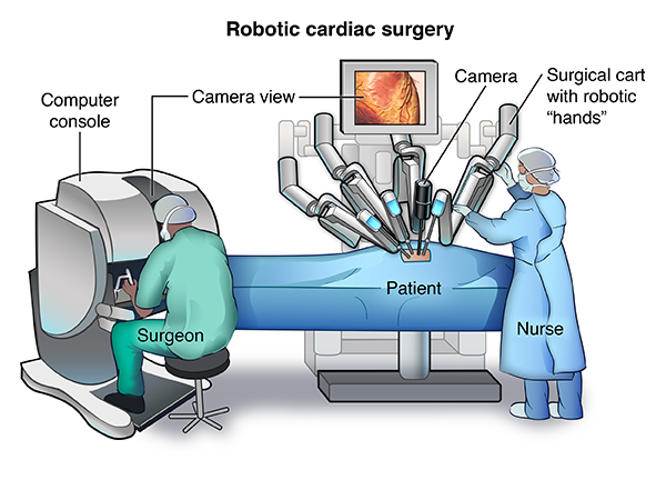 Robotic Cardiac Surgery Johns Hopkins Medicine Health Library
