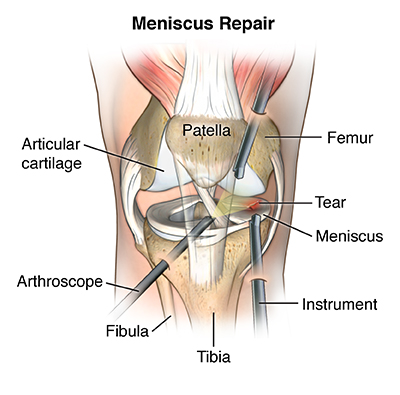 Torn meniscus health encyclopedia university of rochester pmuscsk20140310v0002 ccuart Images