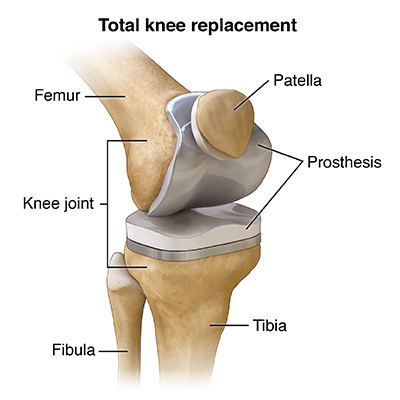 Knee Replacement Surgery Health Encyclopedia