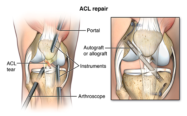 Knee Ligament Repair Johns Hopkins Medicine Health Library