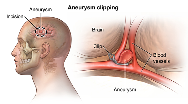 cerebral aneurysm - health encyclopedia - university of rochester, Human Body