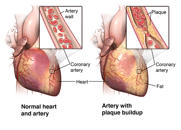 illustration of the heart and arteries, as well as plaque build-up in  arterial