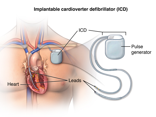 Overview of Pacemakers and Implantable Cardioverter Defibrillators (ICDs) -  Health Encyclopedia - University of Rochester Medical Center