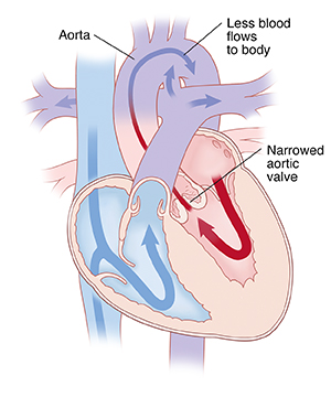 Front view cross section of heart showing aortic stenosis with arrows indicating blood flow through heart.