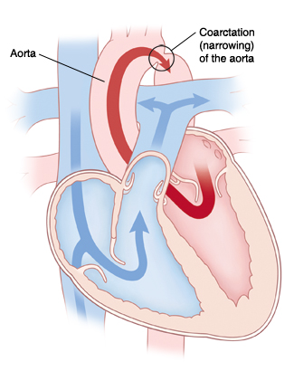 Four-chamber view of heart showing  coarctation of the aorta. Arrows indicate blood flow restricted in aorta.