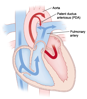 Front view cross section of heart showing patent ductus arteriosus. Arrows indicate blood flowing through patent ductus arteriosus.