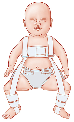 Baby in Pavlik harness.