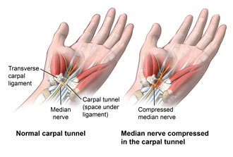 Hand and wrist showing a normal carpal tunnel and the compressed median nerve in an inflamed carpal tunnel.